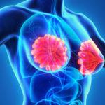 Wie Hormone das Brustkrebsrisiko beeinflussen